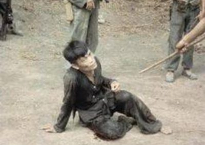 Wounded Viet Cong Prisoner Guarded by ARVN Soldiers